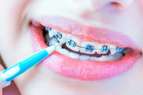 Consejos para cepillarse los dientes con brackets