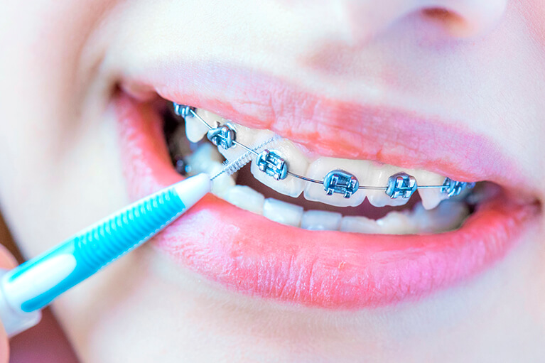 Cómo lavarse correctamente los dientes con brackets