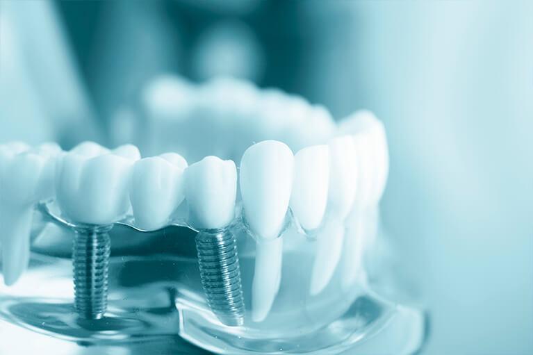 Síntomas de rechazo de un implante dental