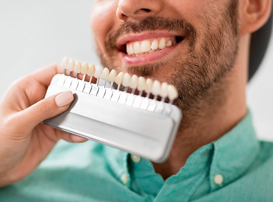 ¿Cómo se ponen las carillas dentales?