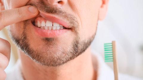 ¿Tienes manchas en las encías? Podrías ser leucoplasia bucal