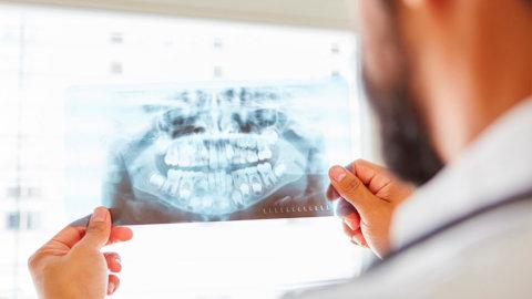 Quiste dentígero: qué es, causas y tratamiento